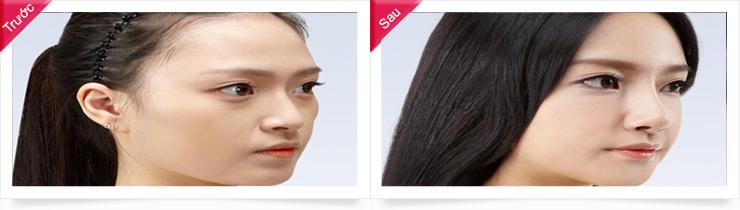 Kết quả nâng mũi S line 3D