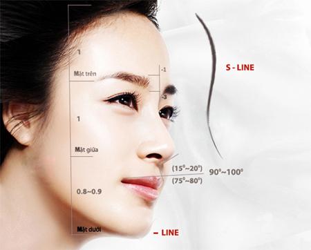 mũi s line là gì
