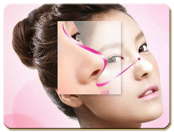 Nâng mũi s line 3d có duy trì vĩnh viễn không