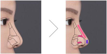 Sửa mũi bị hếch