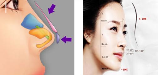 so sánh nâng mũi s line và bọc sụn