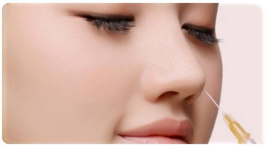 Chi phí nâng mũi không cần phẫu thuật