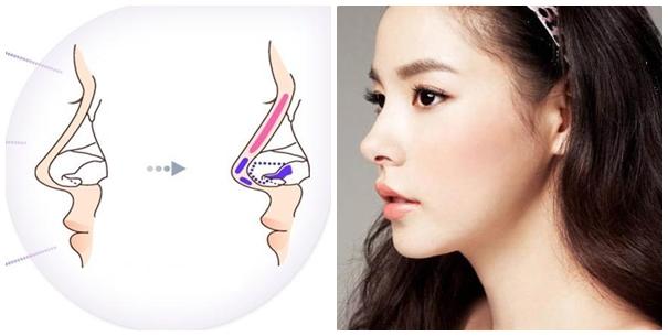 nâng mũi bằng sụn tự thân hay sụn sinh học tốt hơn