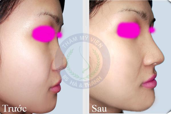 kết quả chỉnh sửa mũi tẹt